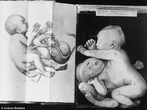美国费城穆特博物馆收藏品中最有名的是这具双头婴儿标本