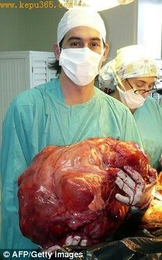 科技时代_阿根廷医生为患者摘除23公斤重恶性肿瘤(图)