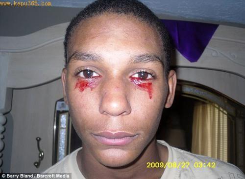 卡尔维诺 英曼双眼经常持续流血