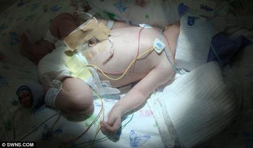 奥利维亚出生时其血红蛋白含量只有正常婴儿的1/6